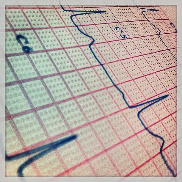 Photo of part of an EKG